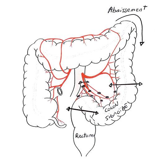 Colectomie gauche et sigmoidectomie
