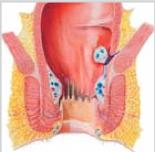 HAL Doppler ou Ligature des Artères Hémorroïdales sous Doppler étape 3