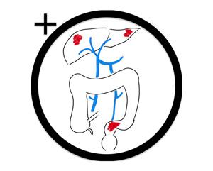 Chirurgie des métastases hépatiques