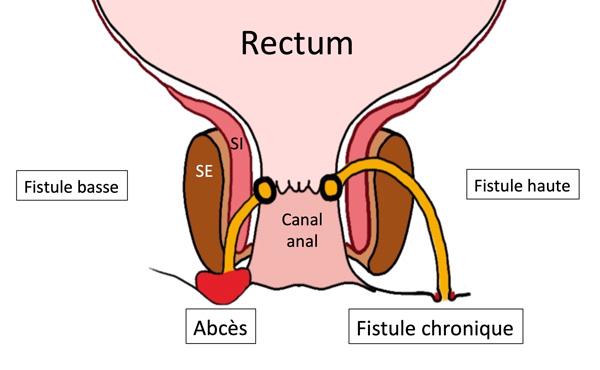 Schéma rectum