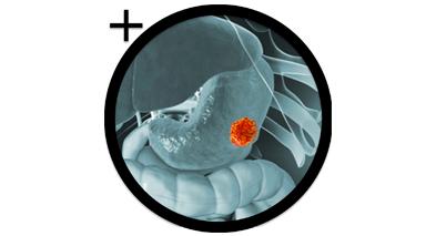Zoom tumeurs estomac