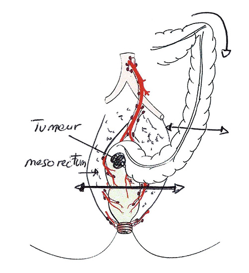 résection antérieure du rectum